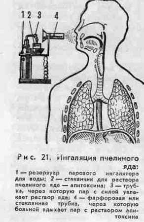 Inhalación con veneno de abeja